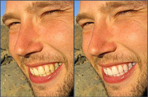 Wybielanie zębów w 5 krokach, fot. loufi / Flickr