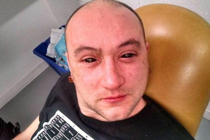 Gabriel Licina z zakroplonymi oczami