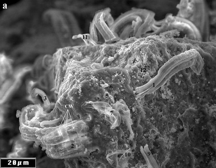 Obce mikroorganizmy