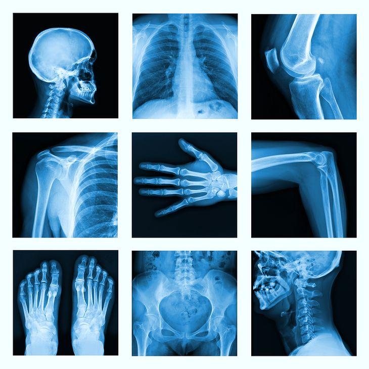 Zdjęcie szkieletu pochodzi z serwisu shutterstock.com