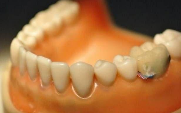 Sztuczny ząb - szpieg w naszych ustach