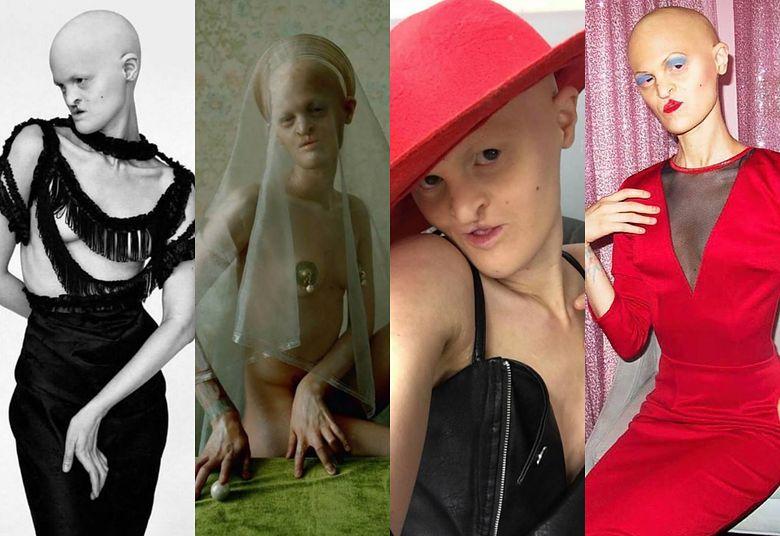 2Oto Melanie Gaydos - modelka z chorobą genetyczną i MUZA NERGALA