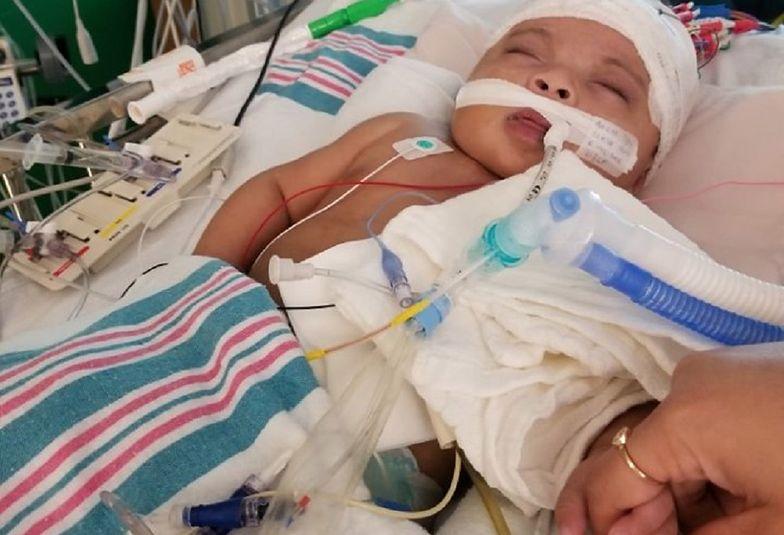 Miała przeżyć 6 godzin. Dziewczynka świętuje pierwsze urodziny