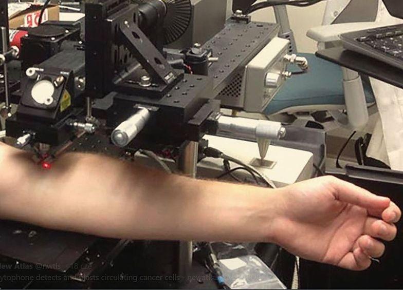 Niszczą komórki czerniaka, oświetlając ręce pacjentów