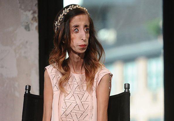 Lizzie Velasquez ma rzadką wadę genetyczną