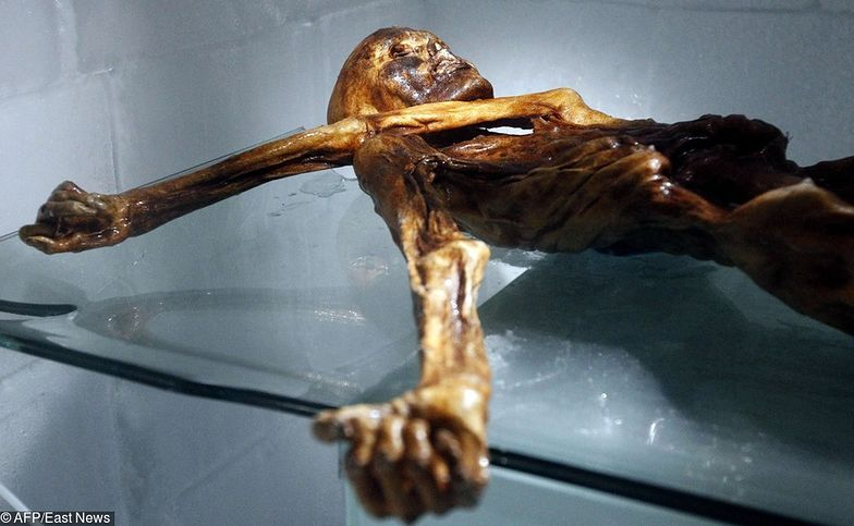 Badacze uważają, że Ötzi korzystał z akupunktury