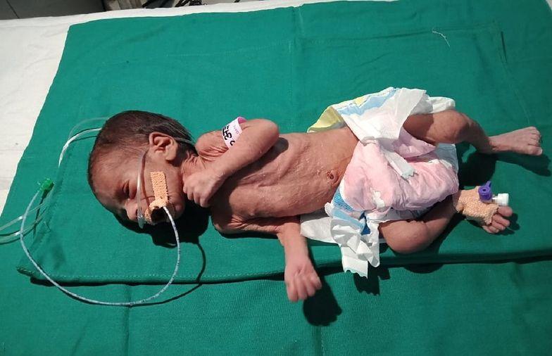 Dziecko pochowane żywcem w garnku. Dziewczynka cudem przeżyła