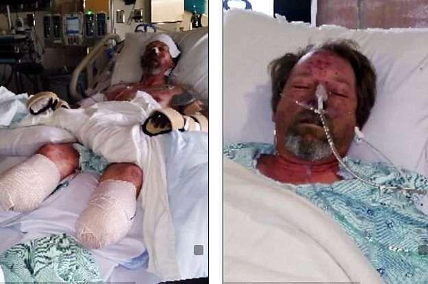 Polizał go pies, został kaleką. Amputowano mu ręce i nogi