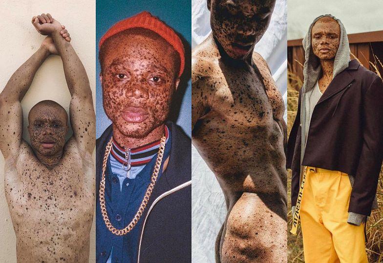 Poznajcie Ralpha Souffranta, czyli modela z bielactwem