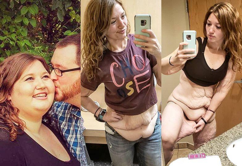 """""""Gruba dziewczyna ma dość"""" 28-latka schudła 122 kilogramy"""