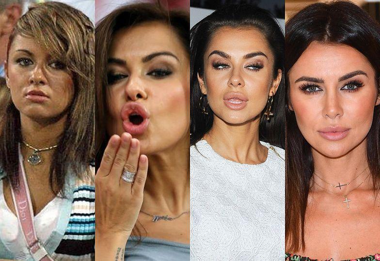 Ewolucja twarzy Natalii Siwiec
