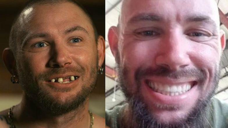 """Bohater """"Króla tygrysów"""" stracił zęby przez zażywanie metamfetaminy. Teraz ma NOWY UŚMIECH (FOTO)"""