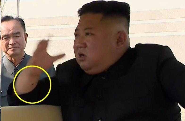 Zdjęcia wykonane 1 maja, ukazują ślady na nadgarstku Kim Dzong Una.