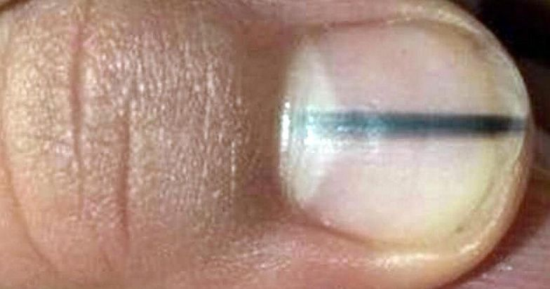 Poszła z paznokciem do kosmetyczki. Ta od razu wysłała ją do lekarza