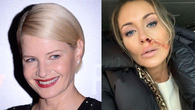 """Kożuchowska komentuje udział Małgorzaty Rozenek w filmie Vegi: """"Do tej pory jej NIE WYRZUCIŁ..."""""""