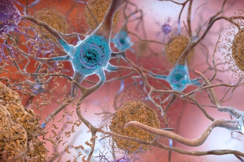 Odkrycie naukowców. Możliwy przełom w badaniach nad chorobą Alzheimera