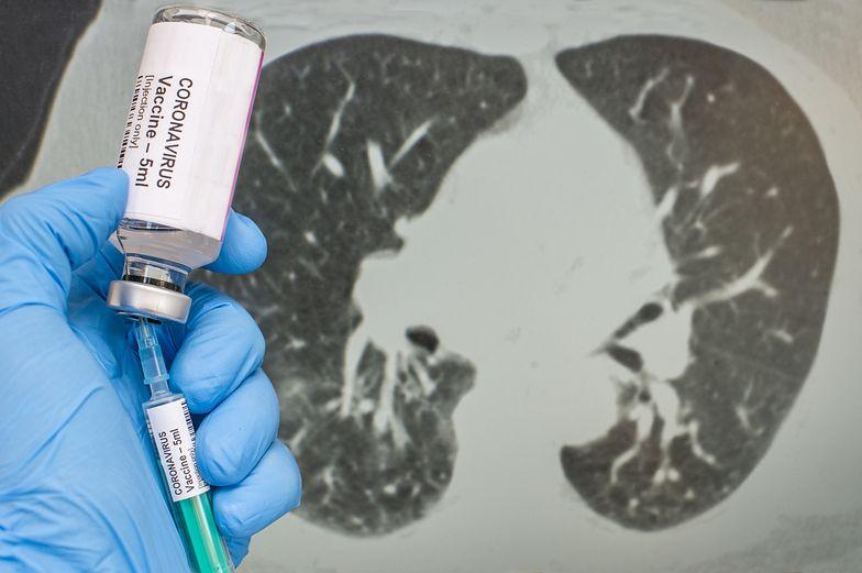 WHO szuka szczepionki na koronawirusa. Stanowcza reakcja USA. Nie pomogą