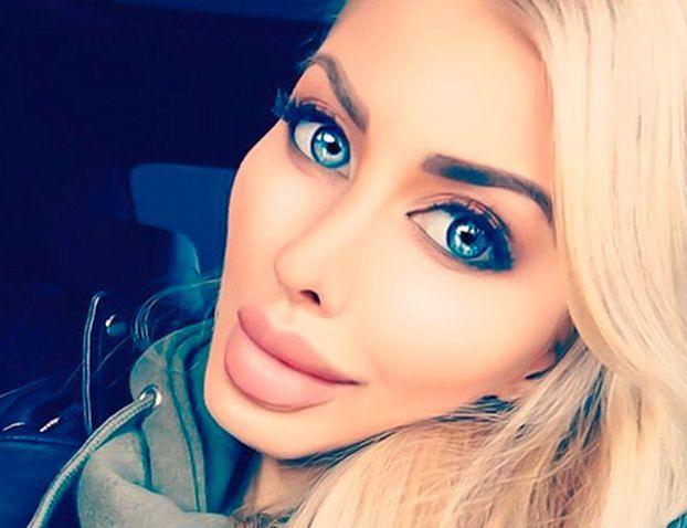 """Anella nabawiła się infekcji podczas powiększania ust: """"Doktorzy doprowadzili do groźnej sytuacji"""""""