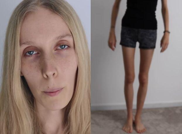 """""""Aga in America"""" pokazała wychudzone ciało po 22 dniach głodówki. """"Spójrz mi w oczy i powiedz, że wyglądam jak CHODZĄCY TRUP"""""""