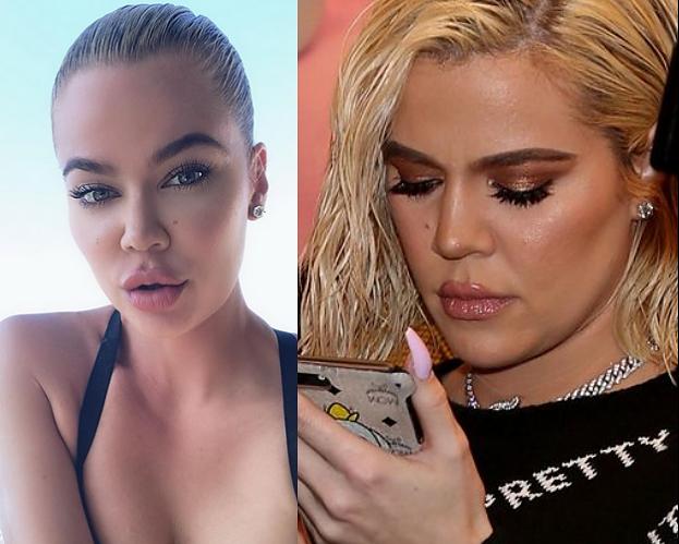 """Internauci krytykują """"nowe usta"""" Khloe Kardashian: """"Są przesadzone, wyglądają paskudnie"""""""