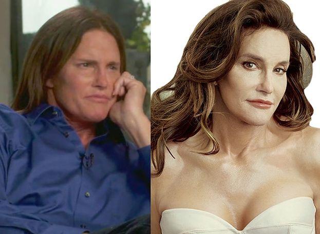 """Caitlyn Jenner spanikowała, gdy zobaczyła się w lustrze:"""" CO JA SOBIE ZROBIŁAM?!"""""""