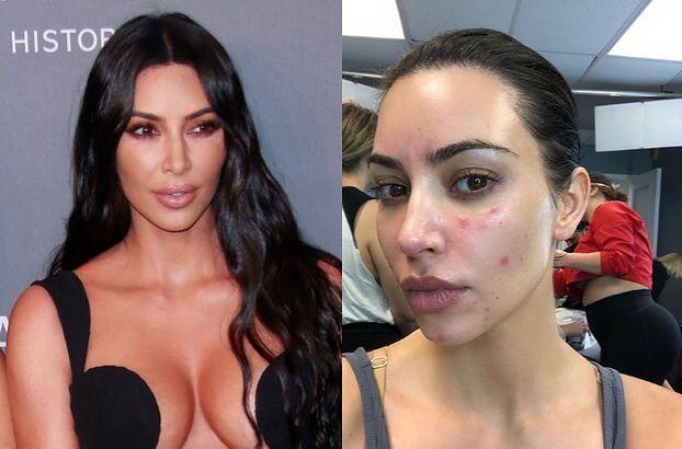 """Kim Kardashian szczerze o walce z łuszczycą: """"Ból był nie do zniesienia. Nie mogłam podnieść telefonu"""""""