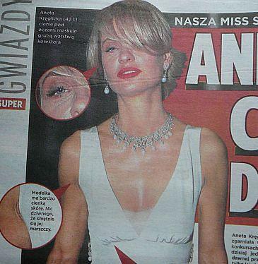 Miss anoreksji