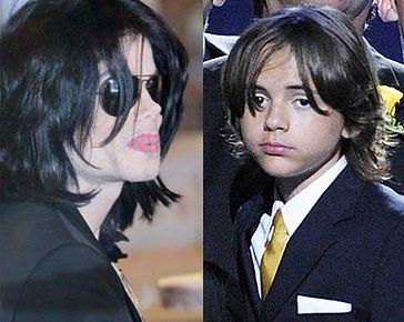 Prince odziedziczył po Michaelu... bielactwo?!