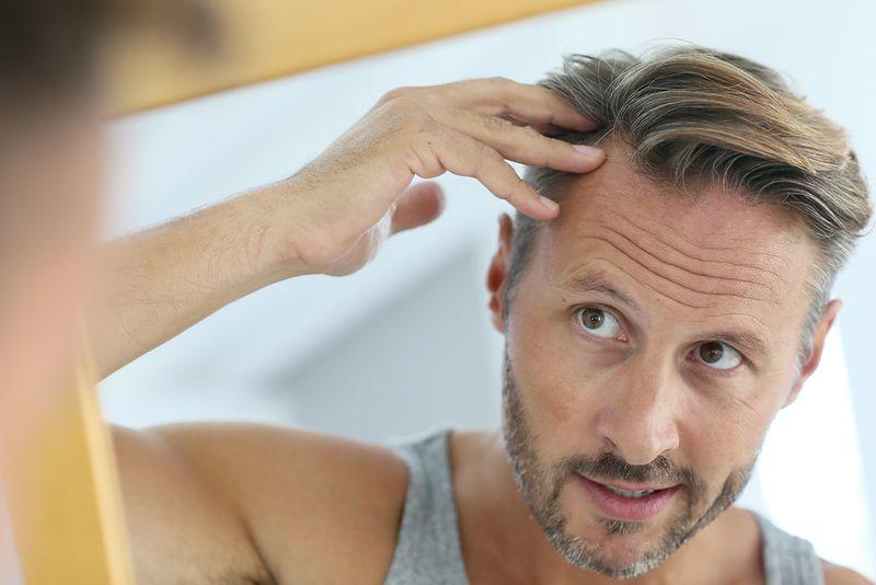 choroba genetyczna wypadanie włosów