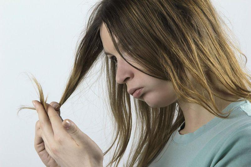 co może oznaczać nadmierne wypadanie włosów