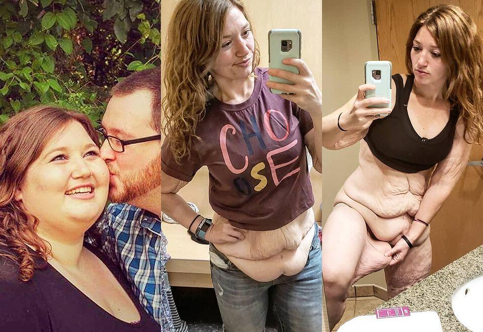 """2""""Gruba dziewczyna ma dość"""" 28-latka schudła 122 kilogramy"""