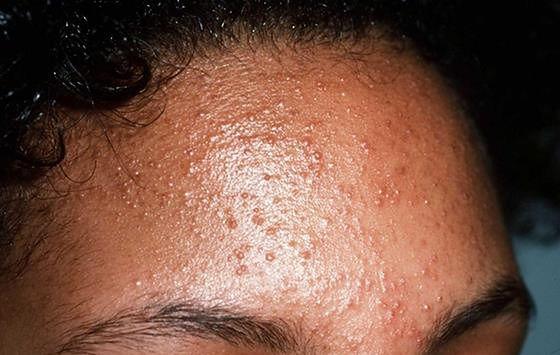 Zapalenie mieszków włosowych - 5 schorzeń, które można pomylić z ...