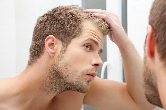 wypadające włosy u faceta
