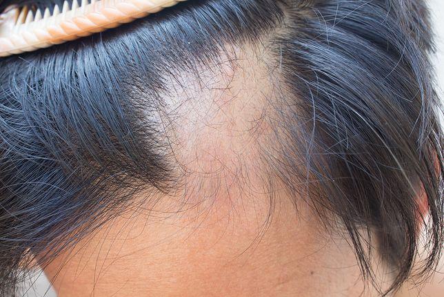 telogenowe wypadanie włosów leczenie