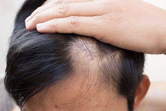 wypadanie włosów przyczyny mp