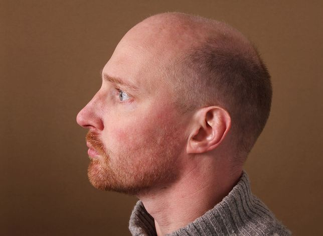 wypadanie włosów u faceta